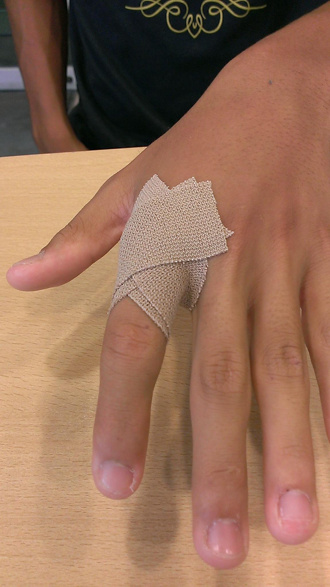 突き指(指の付け根)のテーピング