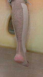 簡単。一人で貼れるアキレス腱のテーピング法