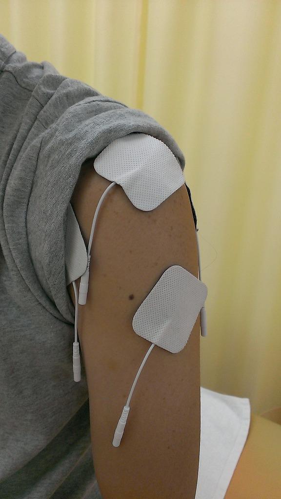 超簡単に五十肩、四十肩を自分で治療する方法